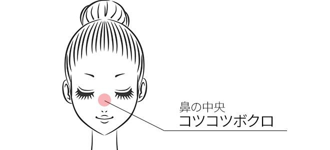 鼻の中央にある「コツコツボクロ」
